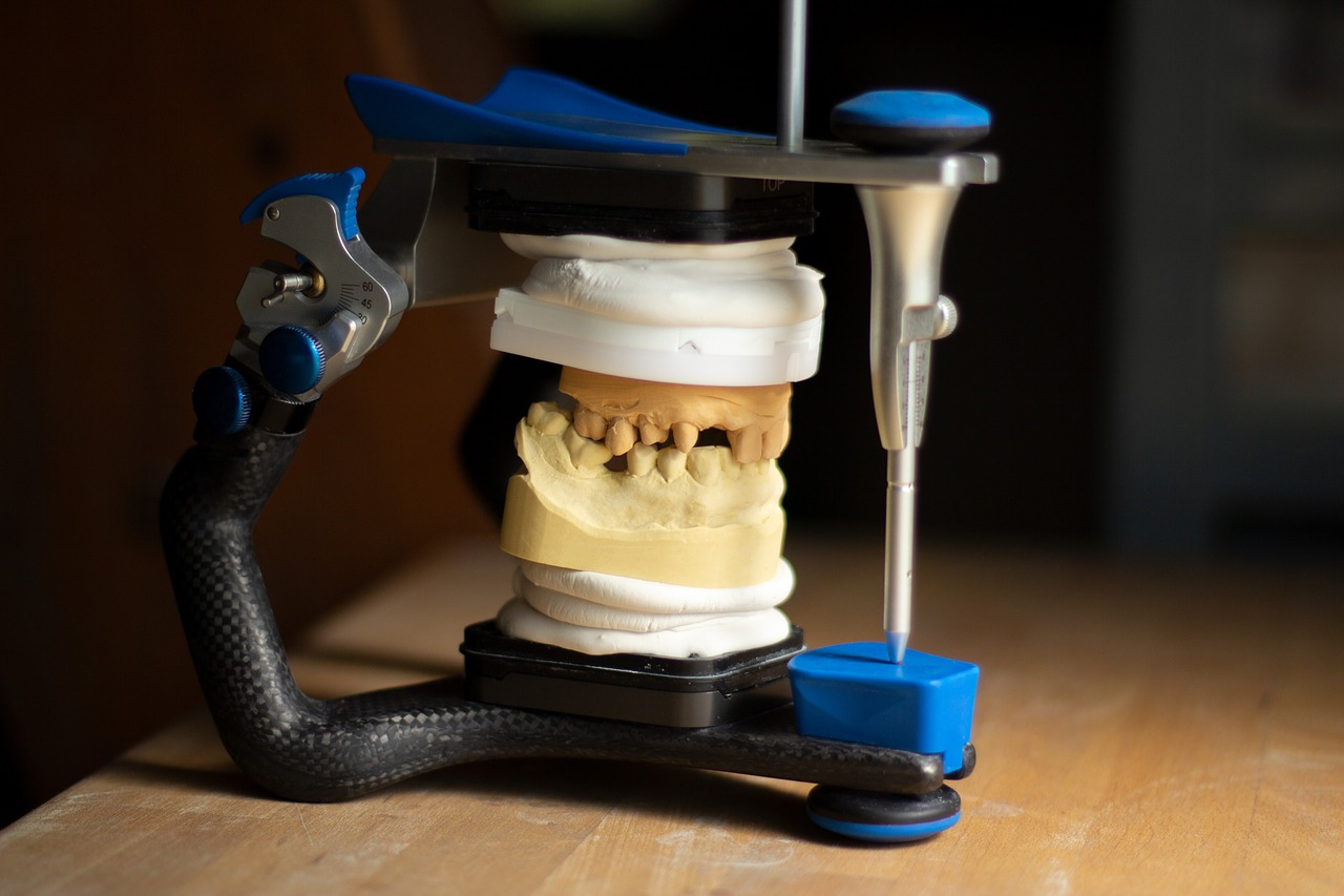 Implanty zębowe – co warto o nich wiedzieć?